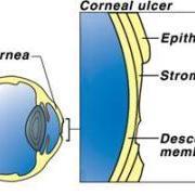corneal ulcer - agoura hills animal hospital  diagram corneal ulcers